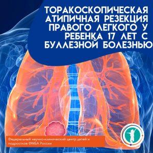 Торакоскопическая атипичная резекция правого легкого у ребенка 17 лет с буллезной болезнью