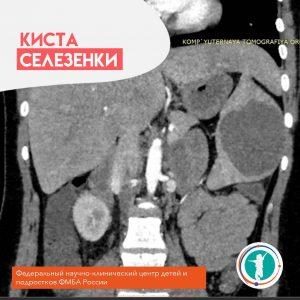 Оперирована девочка 16 лет с диагнозом киста селезенки.